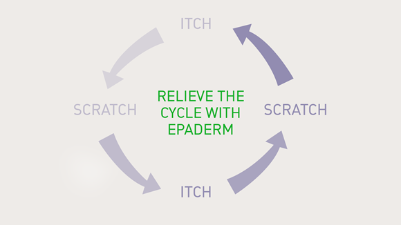 Break the itch cycle with Epaderm